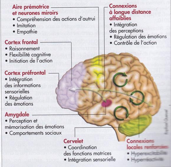 http://lancien.cowblog.fr/images/Cerveau2/autistecerveau.jpg