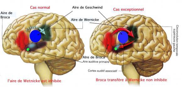http://lancien.cowblog.fr/images/Cerveau2/hallucinationsvoix.jpg