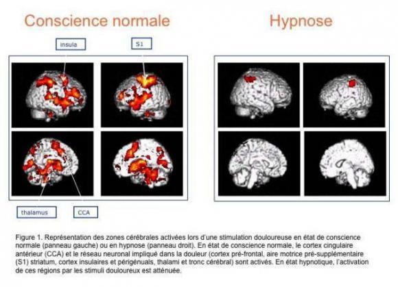 http://lancien.cowblog.fr/images/Cerveau2/hypnose11.jpg
