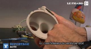 http://lancien.cowblog.fr/images/SanteBiologie-1/Vdroit.jpg